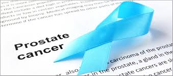 Prostate cancer rising in rural India
