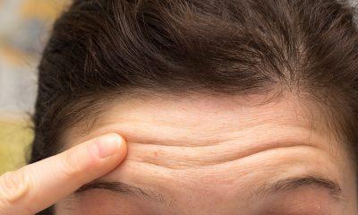 Wrinkles, Forehead, Forehead wrinkles, Cardiovascular death, Cardiovascular disease, Health news, Lifestyle news